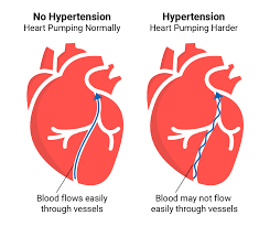 Hypertension higher among educated, urban residents: Study